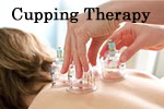 Cupping Therapy being performed.